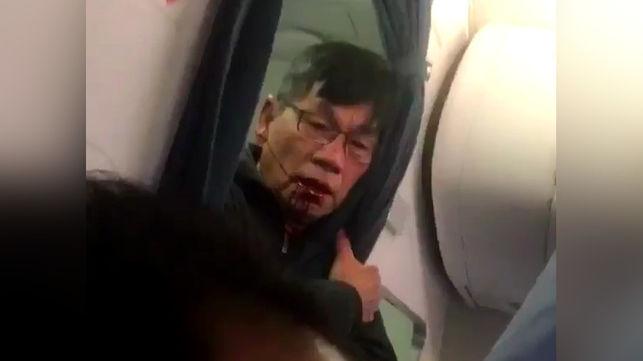 pasajero-united-airlines-despues-arrastrado_ediima20170411_0239_5